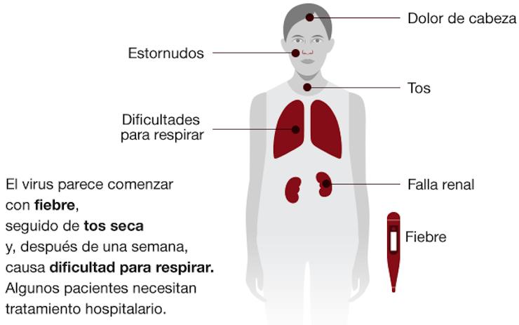 Síntomas del coronavirus. Fuente OMS