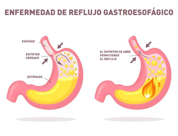 Si el esfínter se abre y permite que los alimentos suban de nuevo al esófago, provoca la ERGE