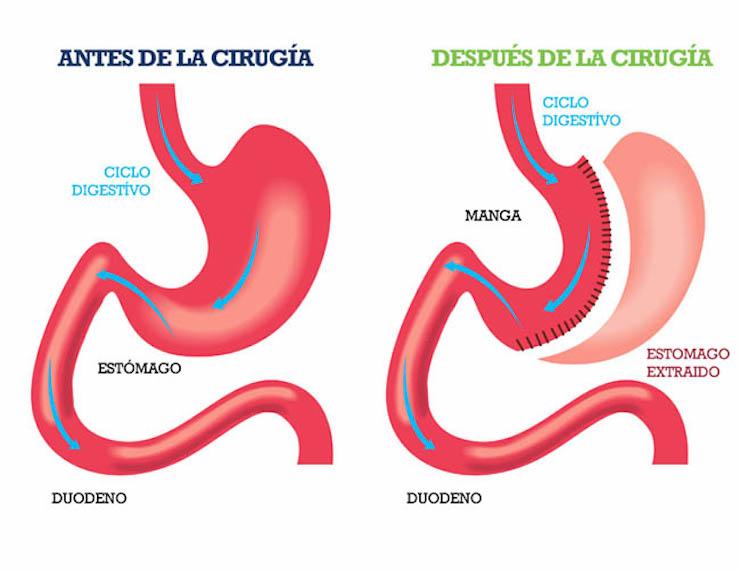 Con la manga gástrica se extirpa más de 80% del estómago del paciente